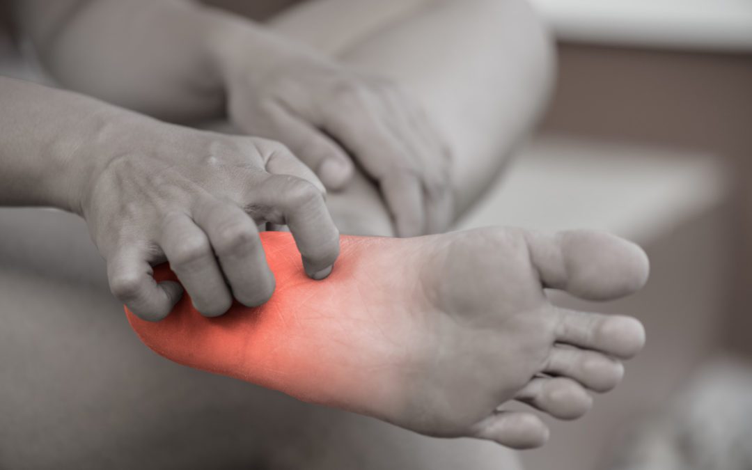 How To Stop Itchy Feet